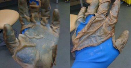 skin-glove